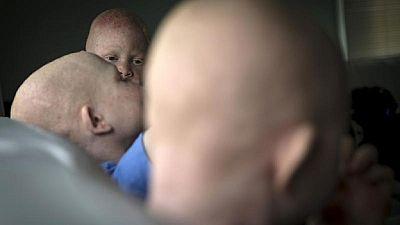 10 personnes arrêtées au Malawi pour avoir assassiné une albinos