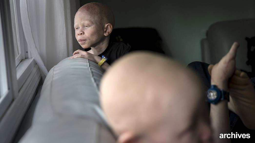 Los albinos podrían extinguirse en Malawi, según la ONU