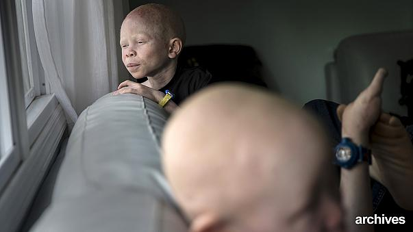 Malawi, la denuncia dell'Onu: albini vittime di crimini rischiano estinzione
