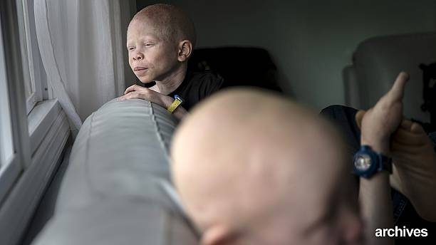 Extinction threat for people with albinism in Malawi as ritual murders rise