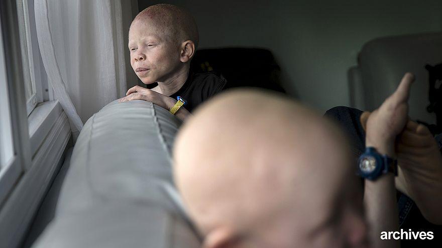 Az ENSZ szerint kiirtják az albínókat Malawiban