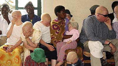 Endangered albinos in Malawi risk 'systematic extinction' - UN Expert