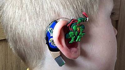3D printed ear technology raising hopes of 2-year old girl