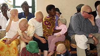 Malawi activists march to parliament over albino killings
