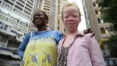 Malawi court bans traditional healers to avert albino killings