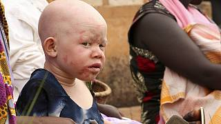 Amnesty International condemns surge in albino killings in Malawi