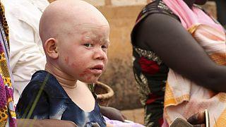 Amnesty International condemns surge in albino killings in Malawi