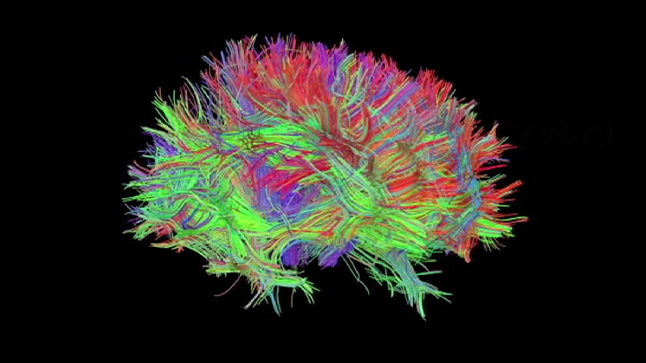 El holograma, puerta para ver el cerebro en 3D