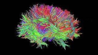 Uma viagem 3D ao cérebro com Holoxica