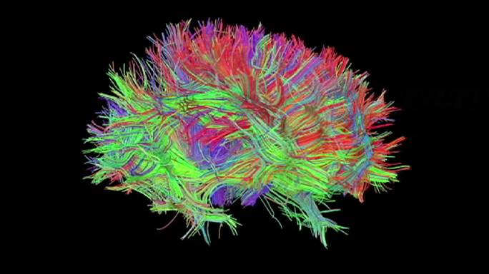 Beyin cerrahisinde hologram dönemi