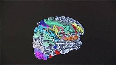 Neuroscientists develop hologram to study the human brain