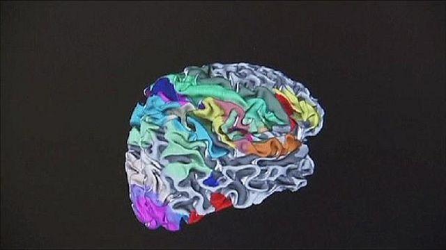 Neuroscientists develop hologram to study the human brain
