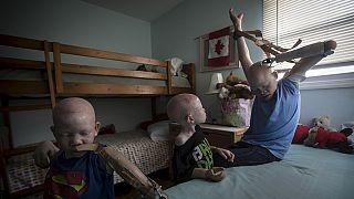 Journée internationale des albinos, quelle leçon tirer ?