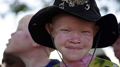 Afrique : union sacrée autour des albinos