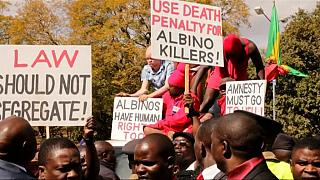 Malawians stage 'half naked' protest to demand action against albino killers
