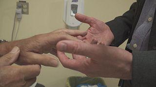 Канада: терапевти з навичками ревматологів