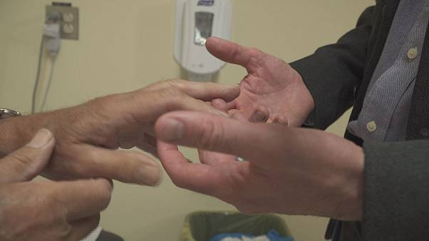 Canada: family doctors help slash wait times for arthritis patients