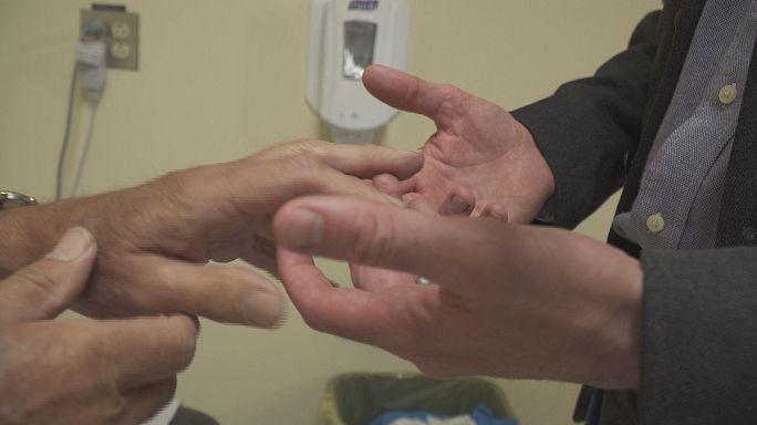 آموزش مهارتهای جدید به پزشکان عمومی کانادا برای درمان بیماری های مفصلی