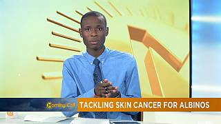 Senegalese sunscreens for albino [The Morning Call]