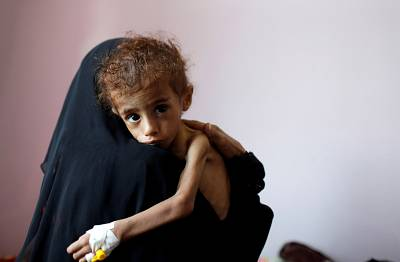 A woman holds a malnourished boy at a hospital in Sanaa, Yemen, on Oct. 6.