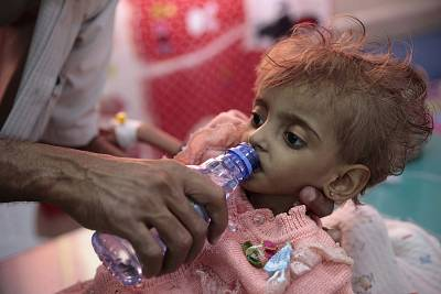 A father gives water to his malnourished daughter at a feeding center in a hospital in Hodeida, Yemen on Sept. 27, 2018.