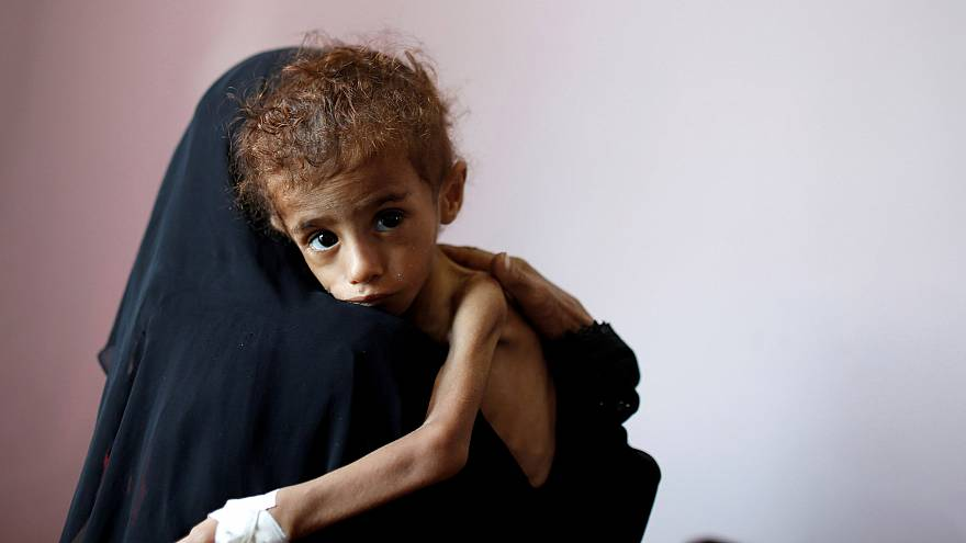 Image: A woman holds a malnourished boy at a hospital in Sanaa, Yemen