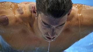 Cupping therapy at Rio Olympics