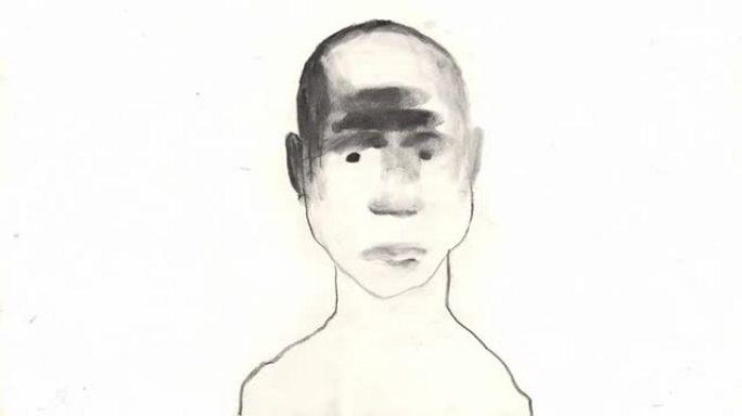 Samuel Le Bihan le Noma, un monstre qui dévore le visage des (Vaincre Noma)