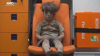 [Photo] Bloodied Syrian boy who got Twitter buzzing