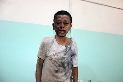 A Yemeni child awaits treatment at a hospital after he was wounded in an airstrike by the Saudi-led coaltion on Aug. 9.