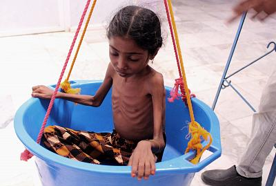 A girl suffering from severe malnutrition is weighed at a hospital in Yemen on Oct. 25.