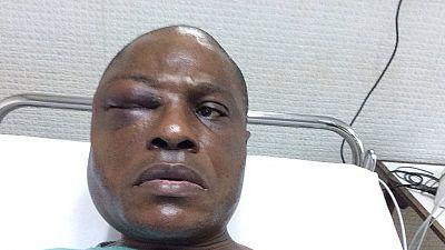 Manifestations en RDC: le député Martin Fayulu hospitalisé après avoir subi des violences