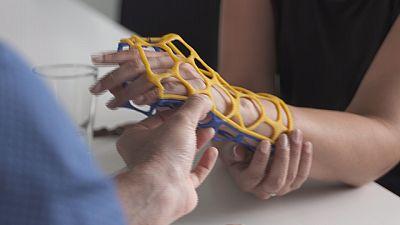 Estrutura em plástico 3D substitui moldes de gesso