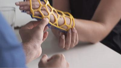 3D printed cast could replace plaster