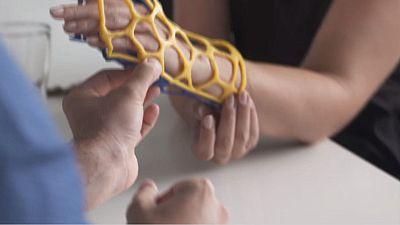 Un plâtre futuriste en 3D pour soigner les fractures plus rapidement