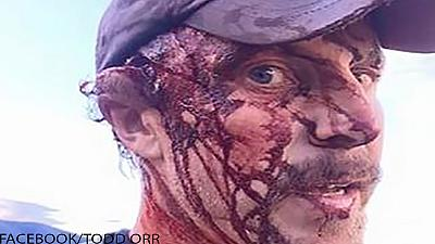 Warning graphic images: Man survives two grizzly bear attacks without serious injury