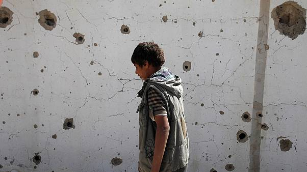 Yemen'de savaşın faturasını siviller ödüyor
