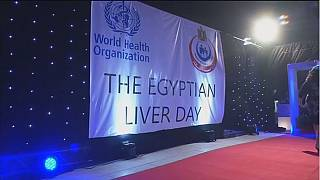 800,000 Egyptians treated for hepatitis C since January 2016