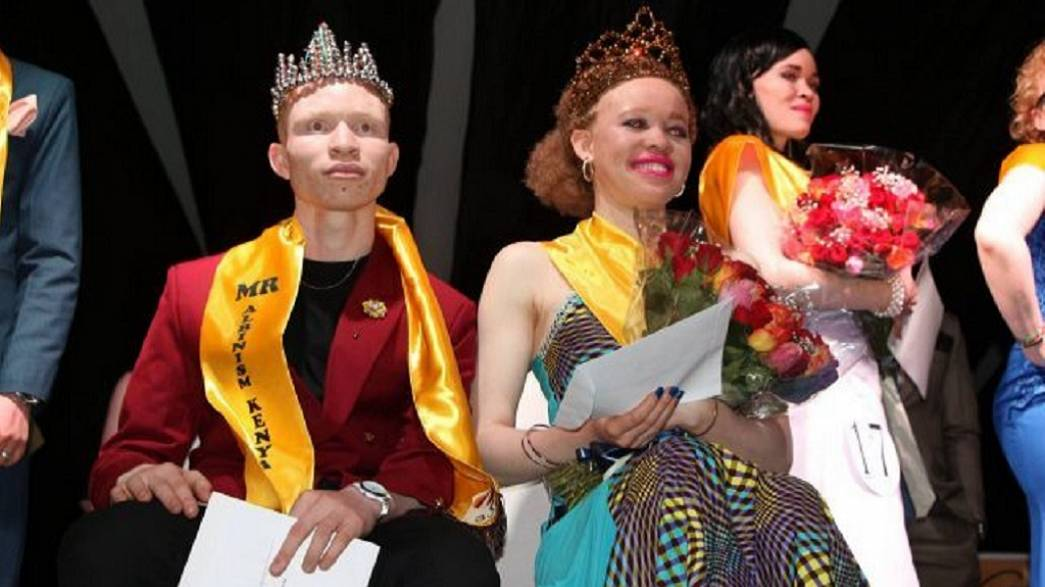 Kenya's first Mr and Miss Albinism crowned