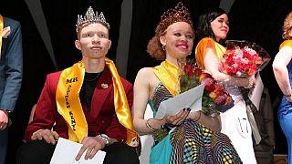 Le Kenya organise son premier concours de beauté pour Albinos [no comment]