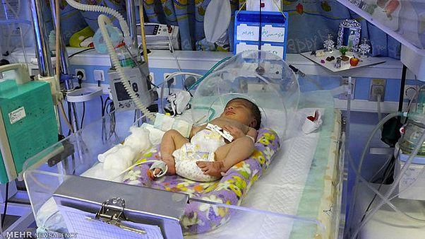 مسمومیت خونی، شایعترین علت مرگ و میر در نوزادی در ایران