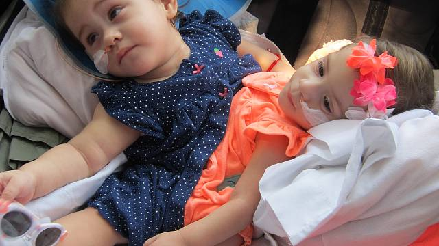 Twin girls conjoined at birth separated after two years