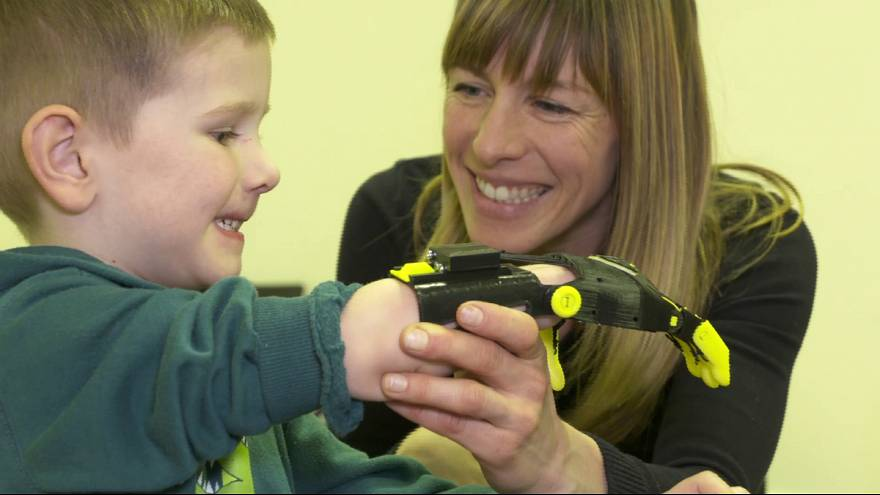 5-year old born without fingers given Batman-styled prosthetic hand