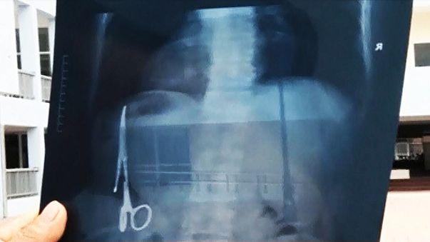Műtéti csipeszt felejtettek a gyomrában