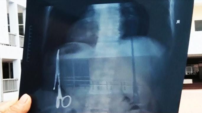 Vietnamese man has surgical forceps in stomach for 18 years