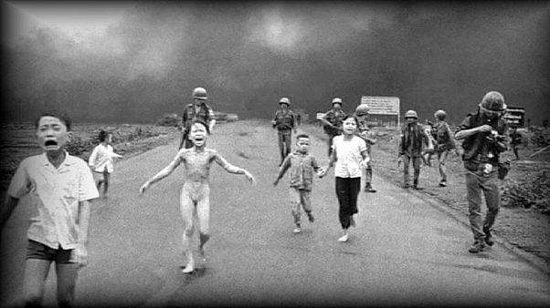 """Vietnam : 44 ans après, """"la fille au napalm"""" retrouve sa sensibilité cutanée"""