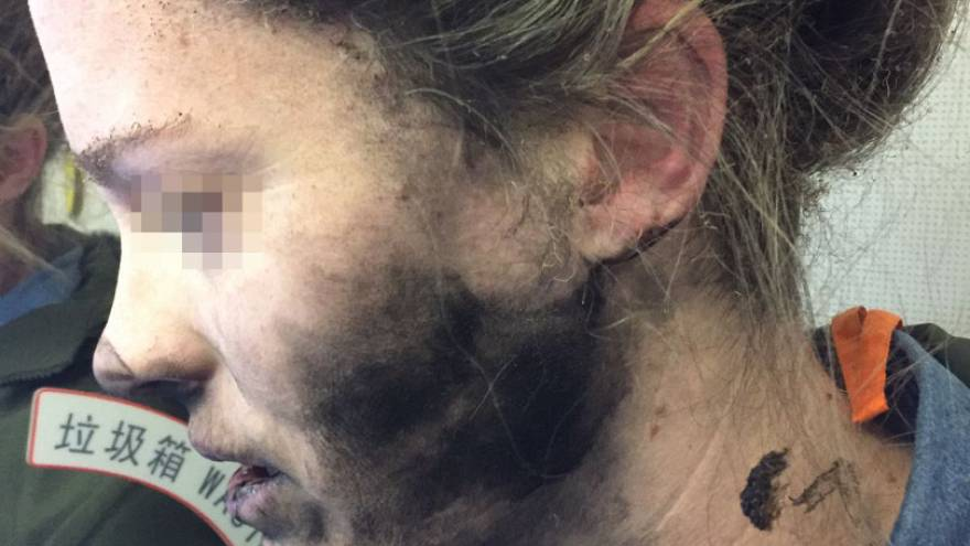 Headphone battery fire causes injury on China-Australia flight