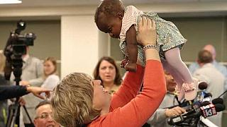 Baby separated from parasitic twin introduced at news conference