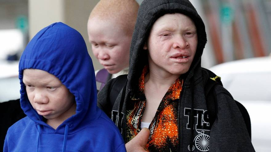 Tanzanie : quatre enfants atteints d'albinisme vont se faire soigner aux États-Unis