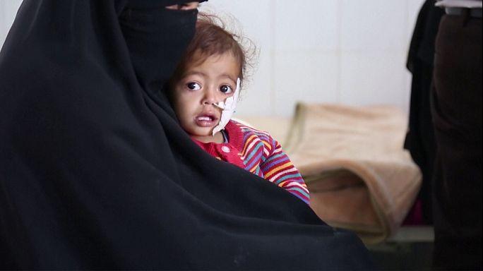 ООН: полмиллиона детей в Йемене страдают от острого недоедания